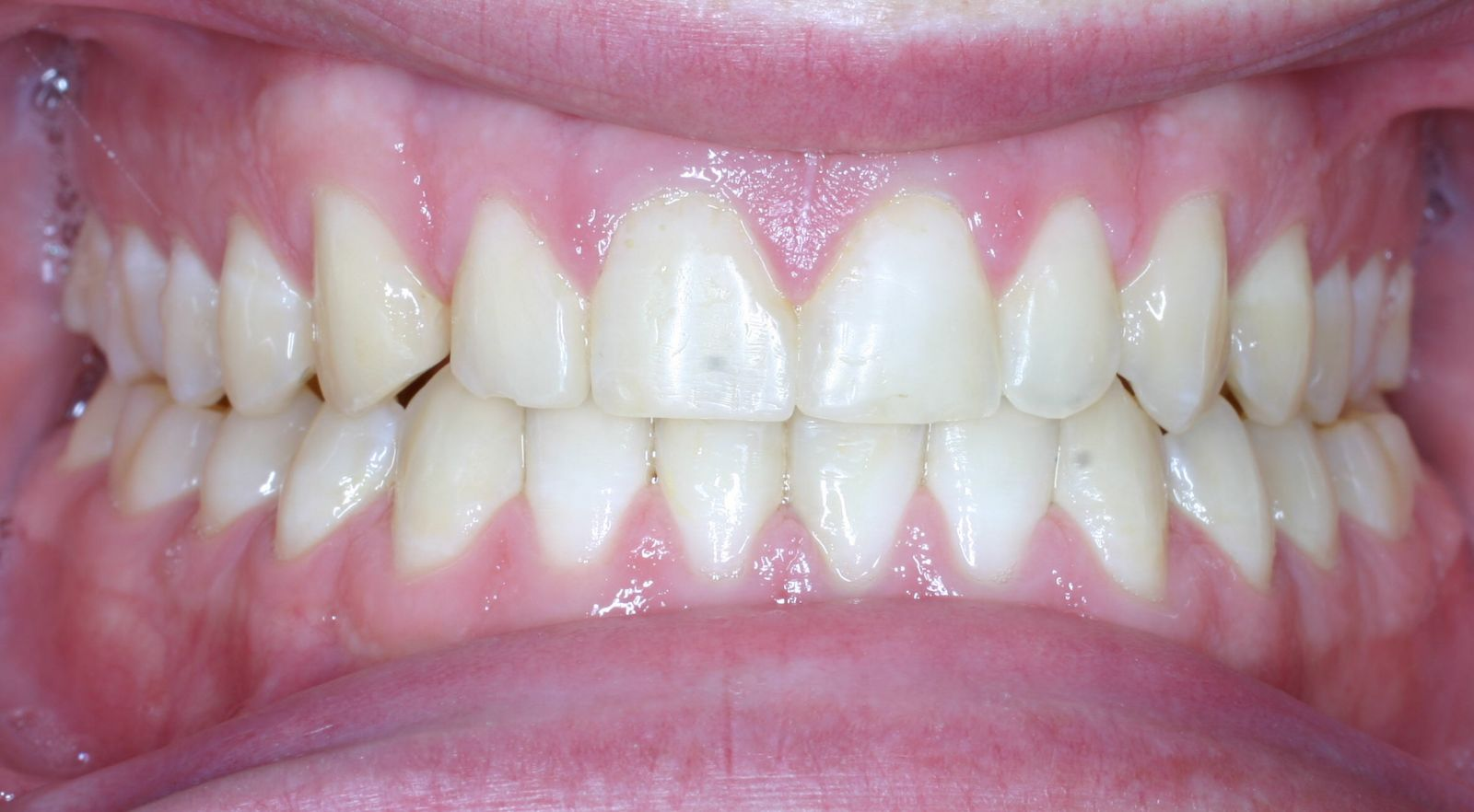 non braces treatment after